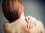Reuma - izomfájdalom