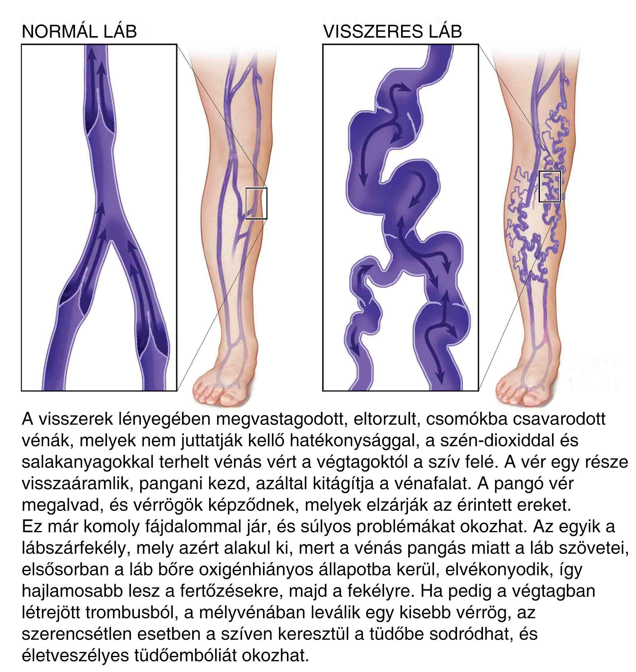 Visszeres láb