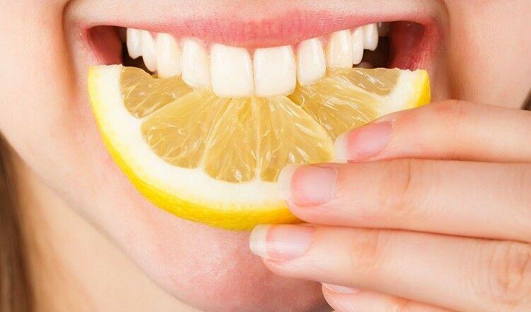 Ezek a legjobb fogfehérítő módszerek