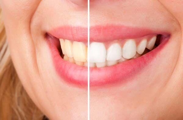 Most megtudhatod, hogy mitől sárgulnak be a fogak!