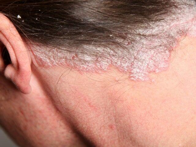 A pikkelysömör a bőr fokozott elszarusodásával járó betegség. Ez a betegség sajnos eddig nem gyógyítható, ugyanakkor a tünetek kellő odafigyelés mellett megszüntethetőek.