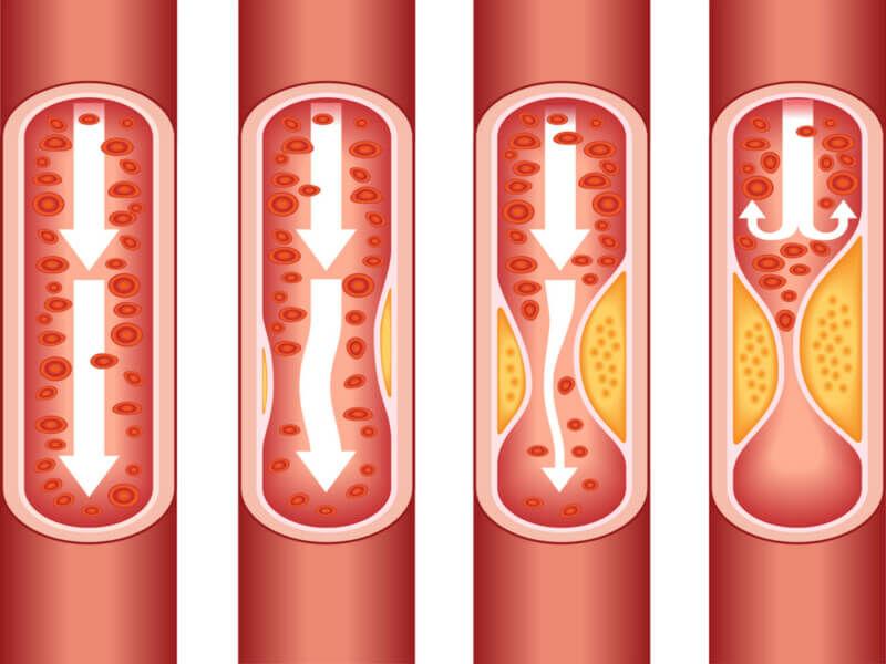 Tudj meg mindent a koleszterinről!