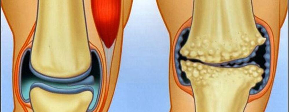 Az artrózis ismertetése.
