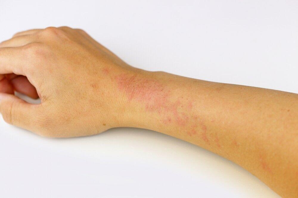 Az atópiás dermatitis 3 rejtett kockázata