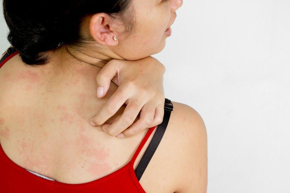 Az ekcéma kezelése könnyebb, mint hinnéd - 7+1 ingyenes, jó tanács bőröd egészségéért