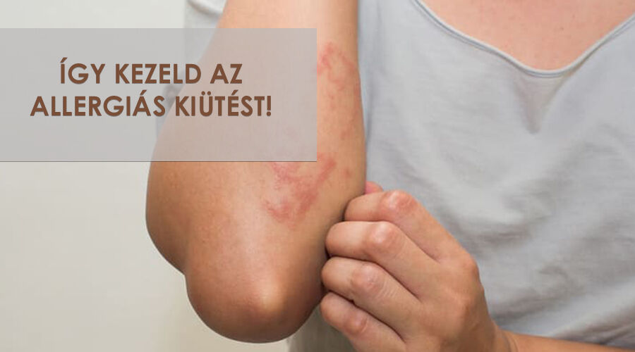 Az allergiás tünetek kezelése.