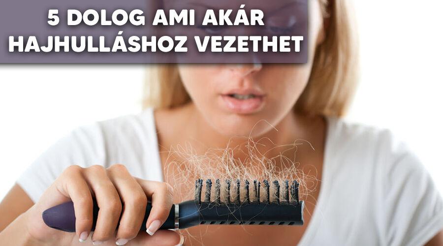 Néhány dolog ami hajhullást okoz