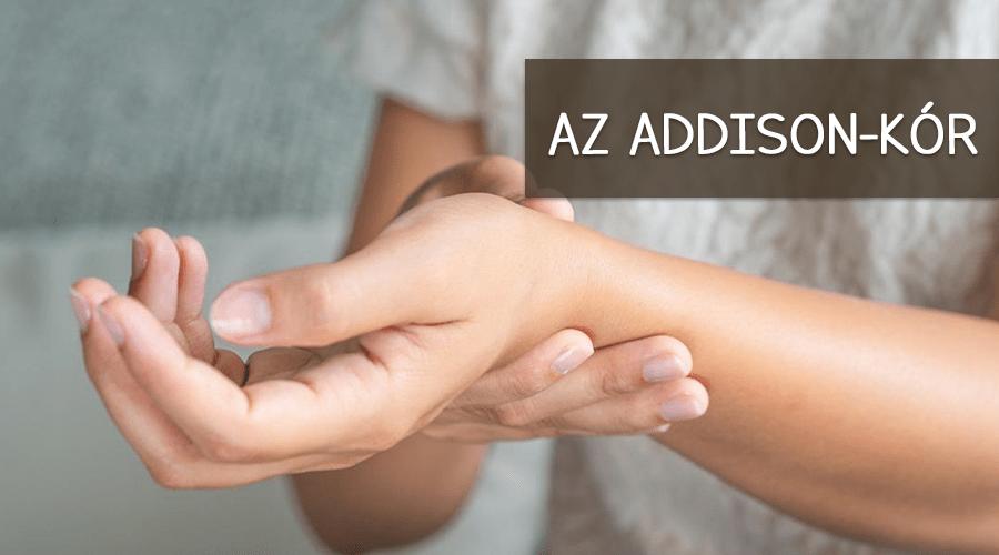Ad Addison kór és tünetei