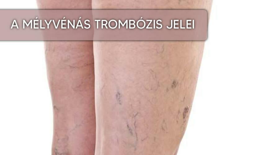 Ezek a trombózis tünetei: 7 jel, amire figyeljen!