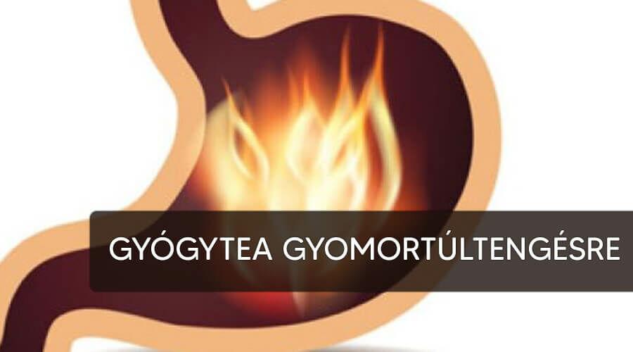 Tea gyomorsavtúltengésre.