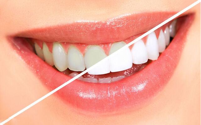 Otthon is végrehajthatsz egy fogfehérítést egyszerűen, alapvető alapanyagokból.