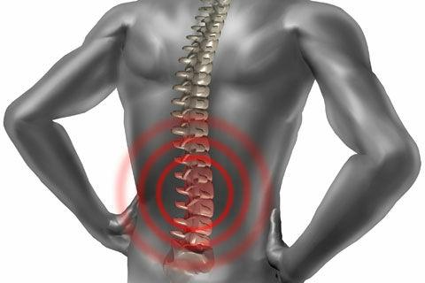 Néhány gyakorlattal megszüntetheted a hátfájdalmat.