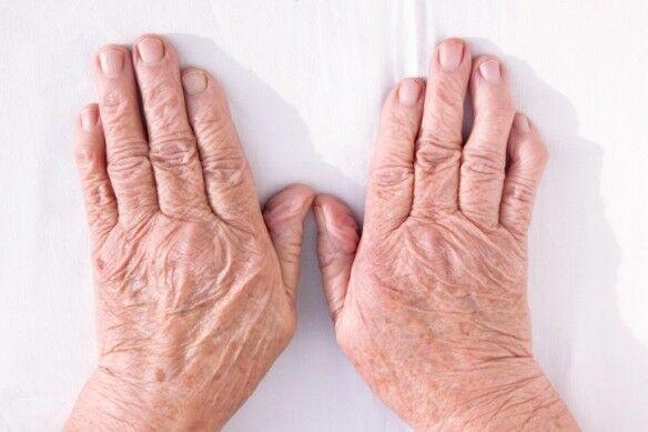 Az ujjak ízületi kopása komoly probléma?