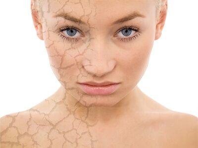 Megoldások száraz bőrre