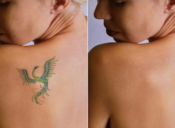 A tetoválás veszélyei