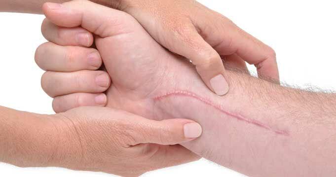 Tippek sebgyógyításra