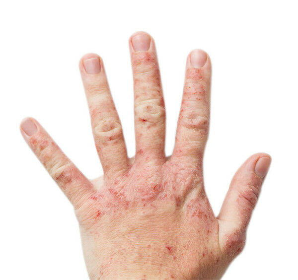 A dermatitis bőrgyulladásról