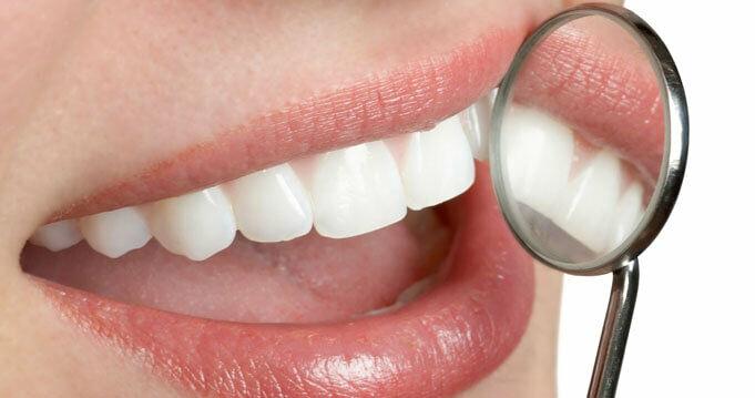 Ezek a leggyakoribb fogápolási tévhitek.