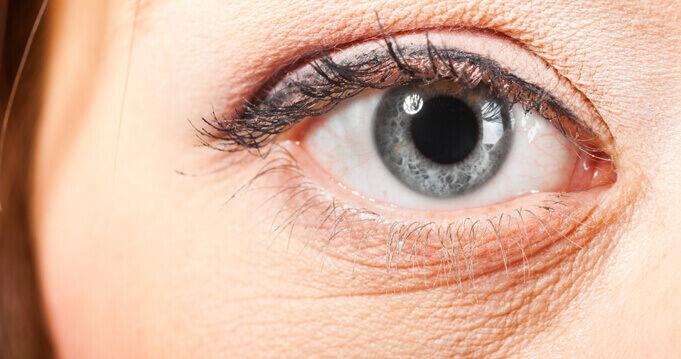Okozhatja fizikai stressz, sok sírás, genetikai hajlam, allergia, bőrgyulladás, rossz étrend, hormonzavar, fronthatás, másnaposság, alváshiány. Ha legközelebb duzzadt szemekkel ébredsz, próbáld ki otthon ezeket a gyógymódokat!