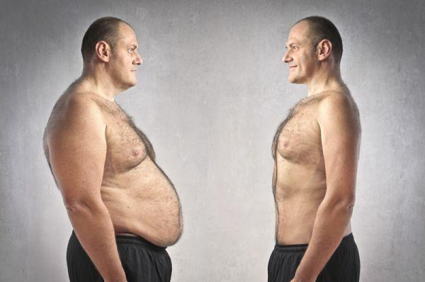 Ezek a betegségek okozhatnak elhízást. Most megtudhatod miért is okozhatnak ezek a betegségek súlytöbbletet.