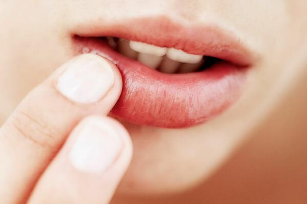 Ha neked is szárad a szád, akkor itt van néhány tipp.