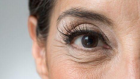 Kezeld a szem alatti ráncokat néhány egyszerű és hatásos házi praktikával!