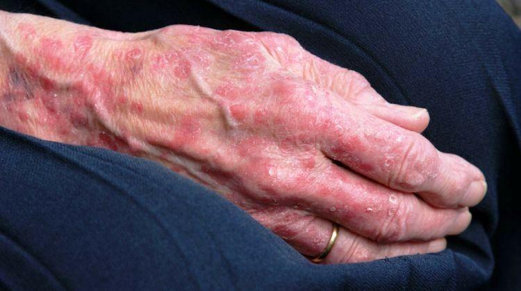 Az orbánc gyakran összetéveszthető a heveny allergiás ekcémával, a mélyvénák gyulladásával, esetleg egy kezdődő üszkösödéssel.