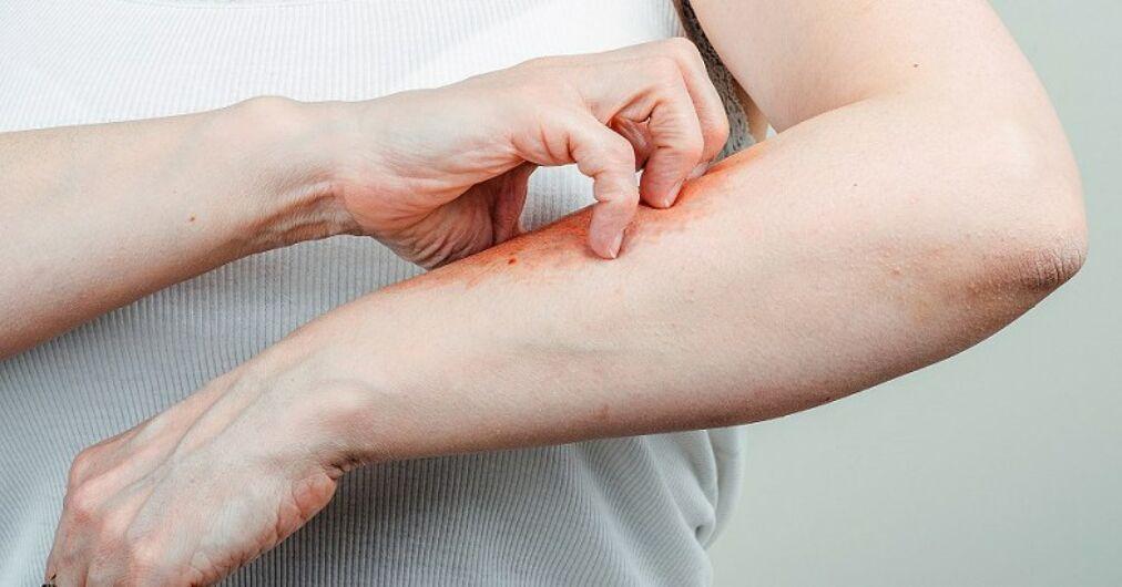hogyan kell kezelni a tenyerek s a lbak pikkelysömörét vörös foltok a kéz bőrén.