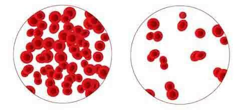 Vörös vérsejtek vérszegény állapotban