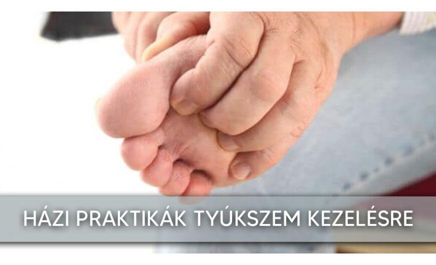 A tyúkszem természetes kezelése az ujjak között