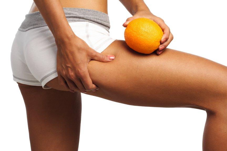 Előzd meg a narancsbőrt.